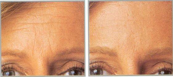 Botox Antes y despues