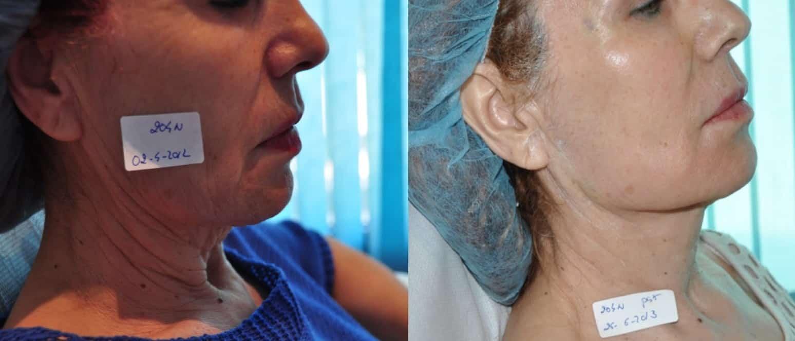 Lifting Facial sin cirugía 3 sesiones